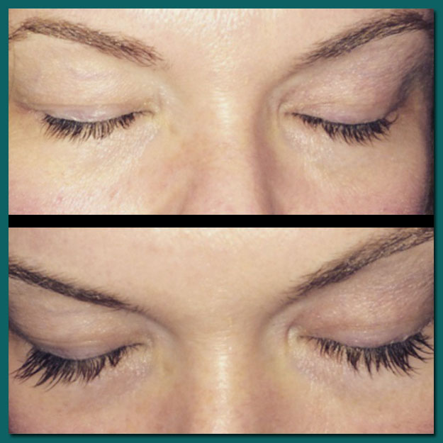 Eyelash Extensions | Before & After